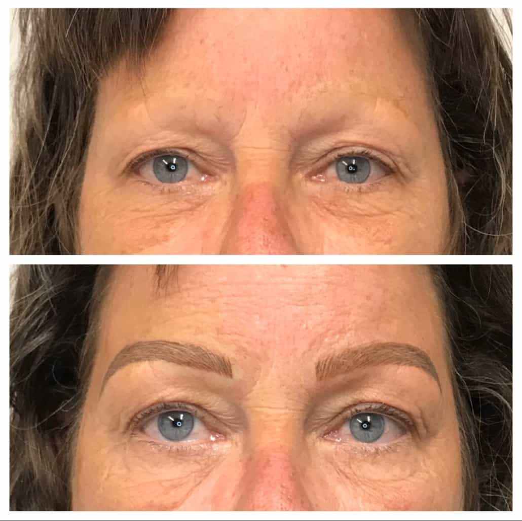 Before No Eyebrows After Beautiful Microbladed Brows